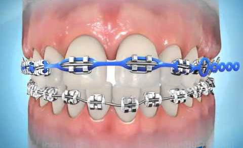 Orthodontie chain sluit spleetjes
